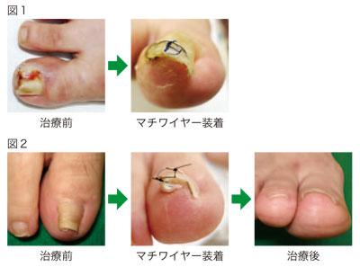 治療 巻き 爪
