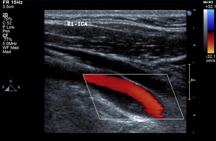 消える プラーク 頚動脈 エコー